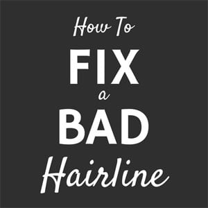 How To Fix A Bad Hairline – Growing Your Hairline Back
