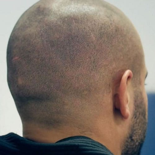 Hair Tattoo Scalp Micropigmentation Men S Hairstyles