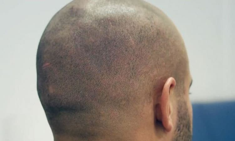 hair tattoo scalp micropigmentation