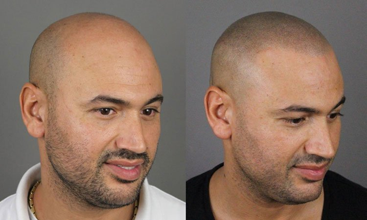 Hair Tattoo - Scalp Pigmentation Before and After Pictures