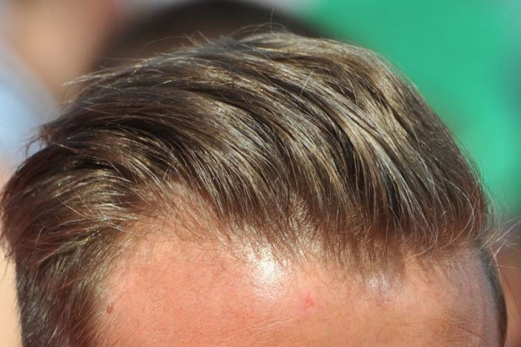 Best Men's Hair Products For Thin Hair