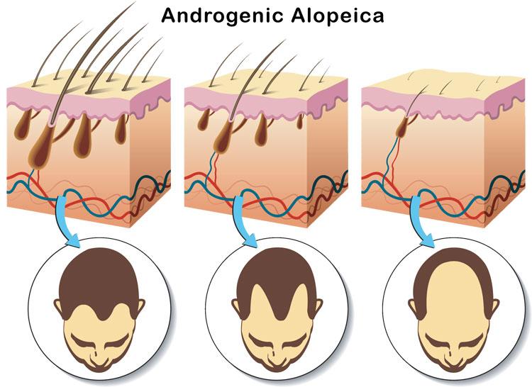 Hair Surge Shampoo Stops Hair Follicle Miniaturization