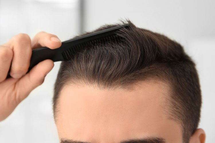How To Fix A Receding Hairline