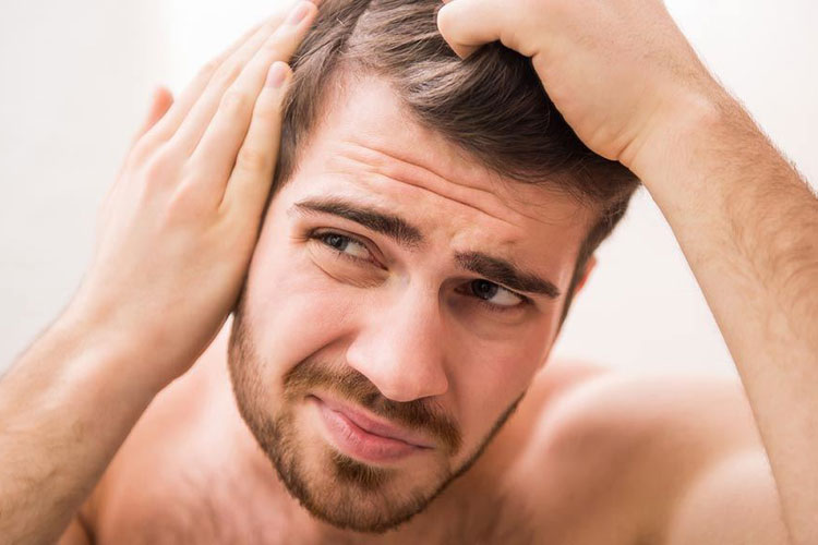 How To Tell If Hairline Is Receding