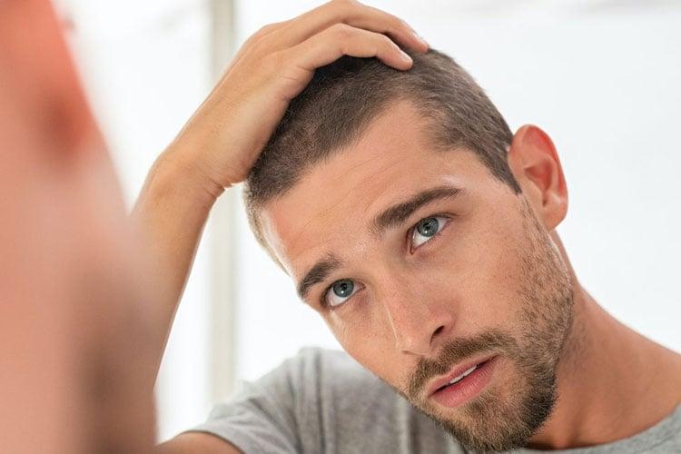 What Is Hair Loss Concealer