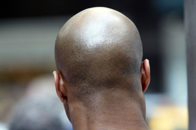 Shaved Head Skin Care